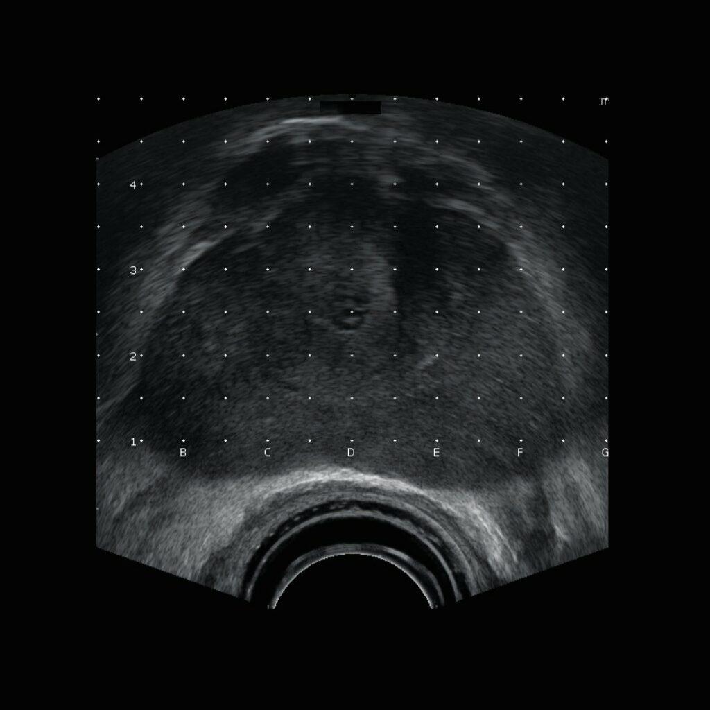 Хирургическое лечение эндометриом яичников в условиях интраоперационной эхографии