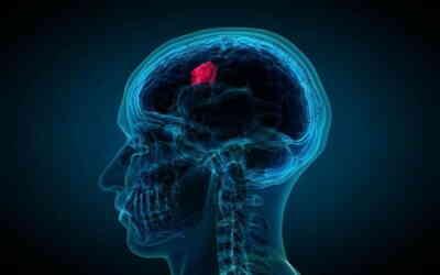 В клинической больнице МЕДСИ прошел практический семинар «3D Трансректальное УЗИ»